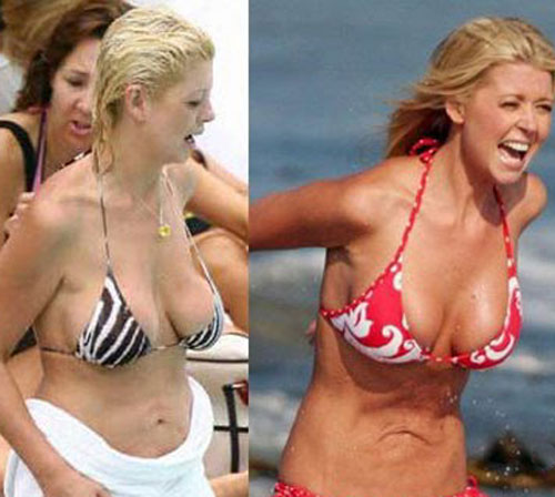 Tara Reid Plastic Surgery Before and After Tara Reid Plastic Surgery Before and After