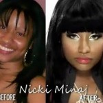 Has Nicki Minaj Had Plastic Surgery ?