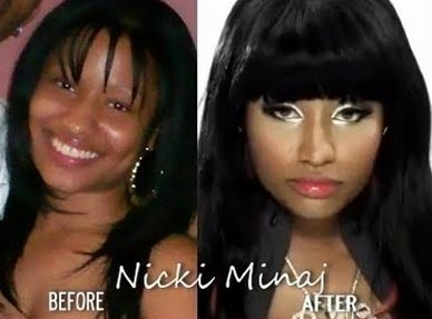 nicki minaj plastic surgery face Has Nicki Minaj Had Plastic Surgery ?