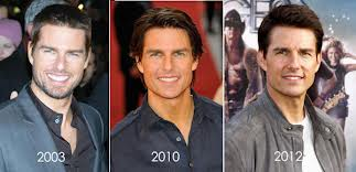 tom cruise plastic surgery Did Tom Cruise Have Plastic Surgery ?