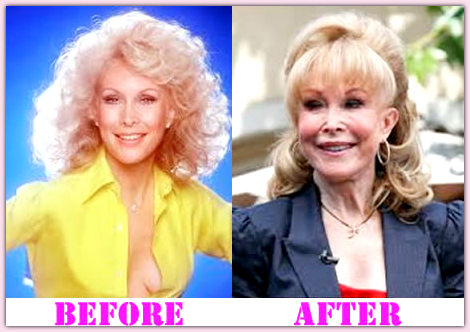 Barbara Eden Plastic Surgery Before And After Barbara Eden Plastic Surgery Before and After