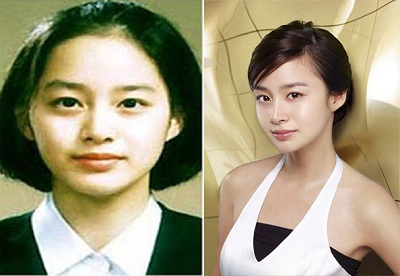 "Kim Tae Hee Face Job Before and After Has The Plastic Surgery Become The ""Part"" of Kim Tae Hee Life?"