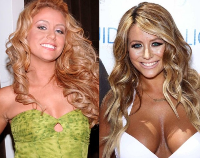 Aubrey O Day Plastic Surgery Before and After Is Aubrey O'Day Plastic Surgery's Denial Able to Cover What Have Changed?