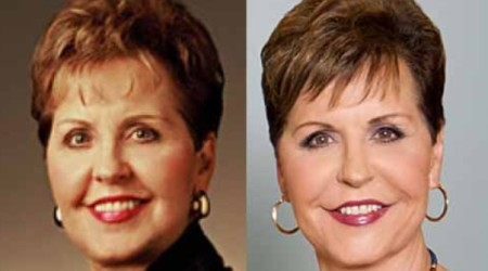 Joyce Meyer Plastic Surgery Before and After 450x250 Did Joyce Meyer Have a Plastic Surgery?