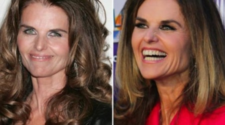 Maria Shriver Plastic Surgery Before and After 450x250 Maria Shriver Plastic Surgery Before and After