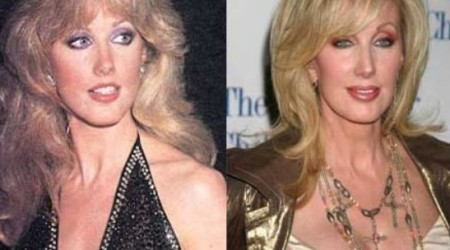 Morgan Fairchild Plastic Surgery Before and After 450x250 Morgan Fairchild Plastic Surgery Before and After