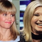 Olivia Newton John Plastic Surgery Before and After 150x150 Lisa Rinna Plastic Surgery for Lip Enhancement
