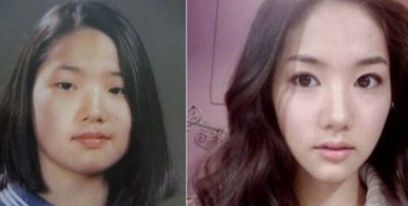 Park Min Young Plastic Surgery Before and After Did Park Min Young Have Plastic Surgeries?