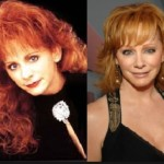 Has Reba McEntire Taken Plastic Surgery?