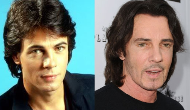 Rick Springfield Plastic Surgery Before and After The Story of Rick Springfields Plastic Surgery