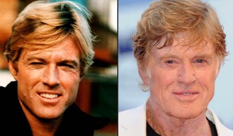 Robert Redford Plastic Surgery Before and After No Plastic Surgery for Robert Redford