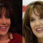 The Plastic Surgery Rumors of Robin McGraw