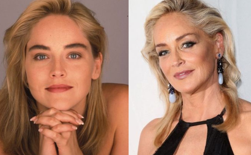 Sharon Stone Plastic Surgery Before and After Sharon Stone Talks about Plastic Surgery