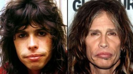 Steven Tyler Plastic Surgery Before and After 450x250 Steven Tyler Plastic Surgery   Before and After