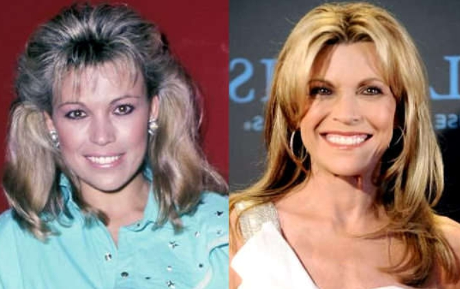 Vanna Whhite Plastic Surgery Before and After Did Vanna White Take Plastic Surgery?