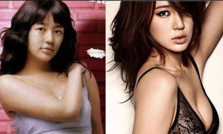 Yoon Eun Hye Plastic Surgery Before and After Do You Believe Yoon Eun Hye's has Taken Plastic Surgery?