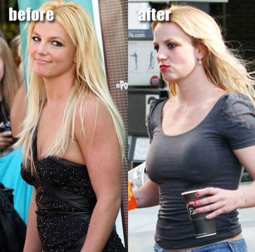 Does chelsea handler have breast implants