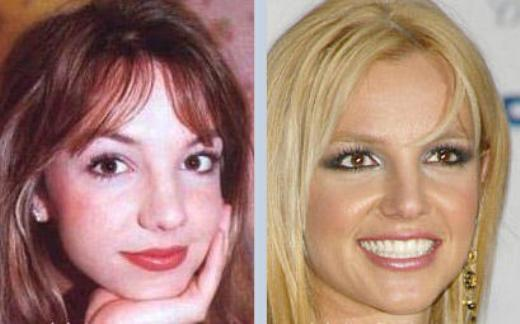 Britney Spears Plastic Surgery Did Britney Spears Have Plastic Surgery?