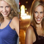 Chelsea Handler Plastic Surgery Before and After Picture