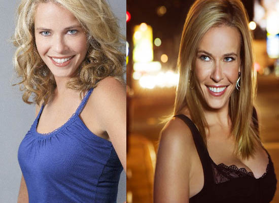 Chelsea Handler Plastic Surgery Chelsea Handler Plastic Surgery Before and After Picture