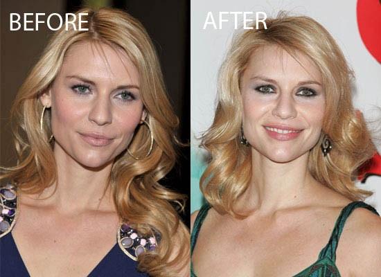 Claire Danes Plastic Surgery Did Claire Danes Have Plastic Surgery ?