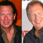 Garry Shandling Plastic Surgery 150x150 Howard Stern Plastic Surgery Before and After