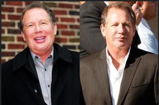 Garry Shandling Plastic Surgery Picture Garry Shandling Plastic Surgery Before and After
