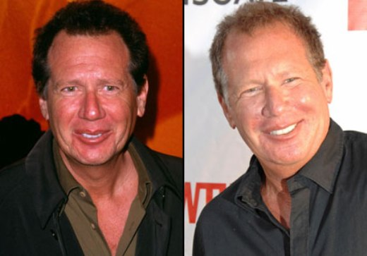 Garry Shandling Plastic Surgery Garry Shandling Plastic Surgery Before and After