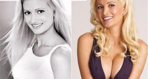 Holly Madison Plastic Surgery Holly Madison Plastic Surgery Breast Augmentation