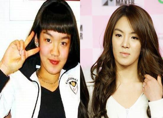 Hyoyeon Plastic Surgery Hyoyeon SNSD Plastic Surgery Rumors