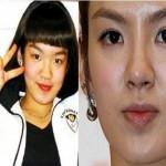 Hyoyeon SNSD Plastic Surgery Rumors