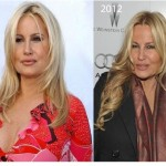 Jennifer Coolidge was Accused Overdoing Plastic Surgery