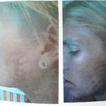 Plastic Surgery Nightmare Jennifer Esposito Appearance Disaster