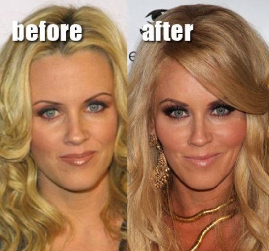 Jenny McCarthy Plastic Surgery Before After Jenny McCarthy Loves Plastic Surgery Botox