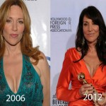 Katey Sagal Plastic Surgery 150x150 Marie Osmond Plastic Surgery Before and After Picture
