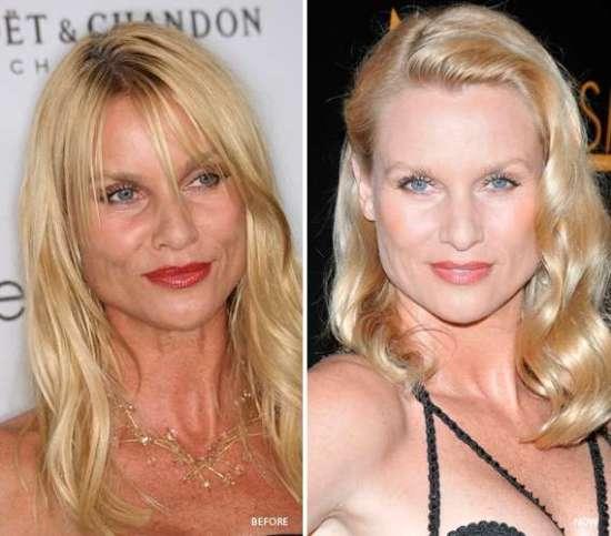 Nicollette Sheridan Plastic Surgery Nicollette Sheridan Rumored Plastic Surgery Chin Implant