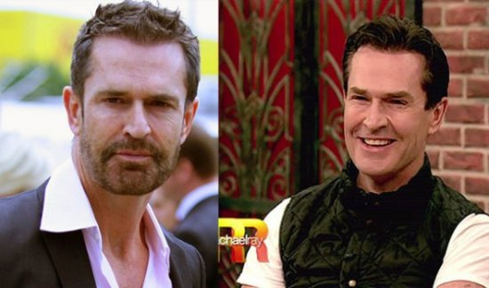 Rupert Everett Plastic Surgery Rupert Everett Look Young Because of Plastic Surgery