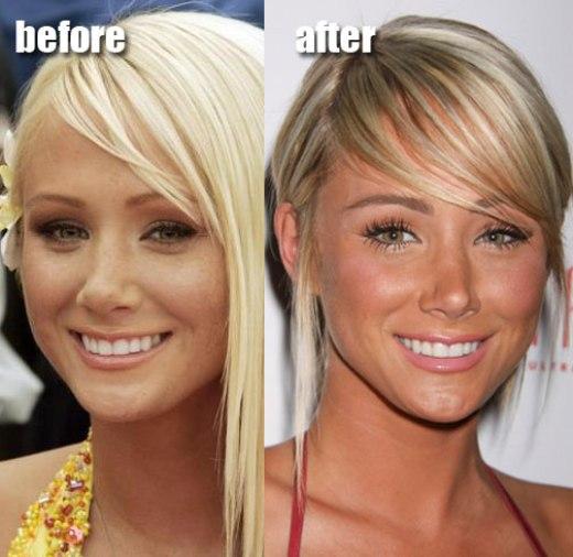 Sara Underwood Plastic Surgery