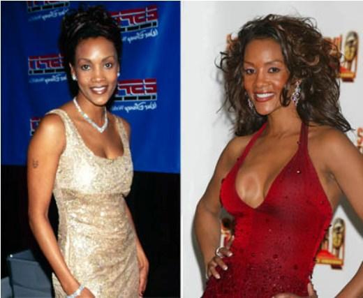 Vivica Fox Plastic Surgery Before After Vivica Fox Plastic Surgery Before and After