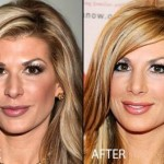 Alexis Bellino Nose Job Before and After
