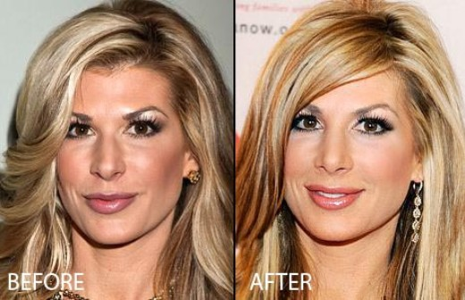 Alexis Bellino Nose Job Alexis Bellino Nose Job Before and After