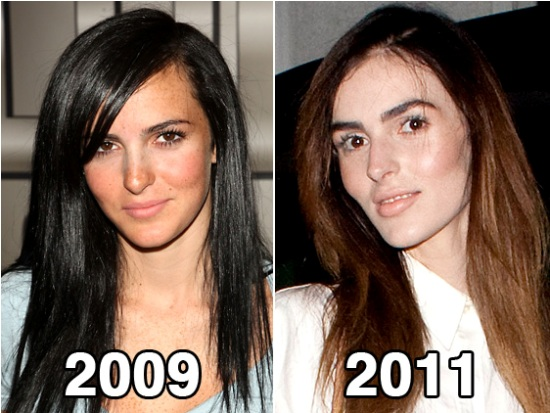Ali Lohan Before and After Plastic Surgery Ali Lohan Plastic Surgery Rumor Before and After Pictures