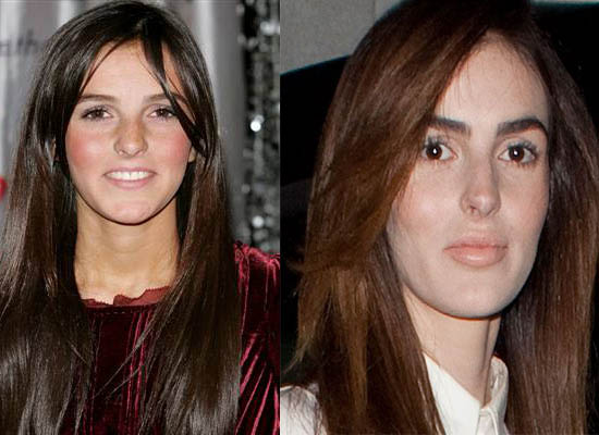 Ali Lohan Plastic Surgery Ali Lohan Plastic Surgery Rumor Before and After Pictures