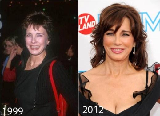 Anne Archer Plastic Surgery Did Anne Archer Have Plastic Surgery?
