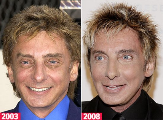 Barry Manilow Plastic Surgery Pic
