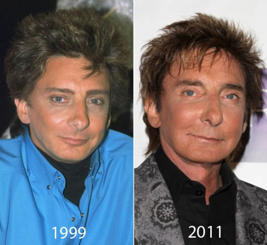 Barry Manilow Plastic Surgery Barry Manilow Plastic Surgery Before and After Pictures