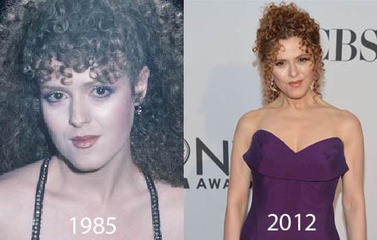 Bernadette Peters Plastic Surgery Did Bernadette Peters Have Plastic Surgery?