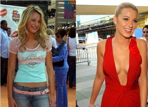 Actresses with breast implants before and after