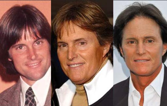Bruce Jenner Plastic Surgery Bruce Jenner Plastic Surgery   Facelift, Nose Job, Botox