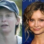 Did Calista Flockhart Have Plastic Surgery?
